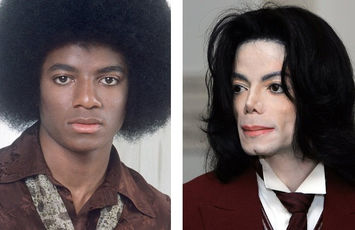 Michael-Jackson avant après